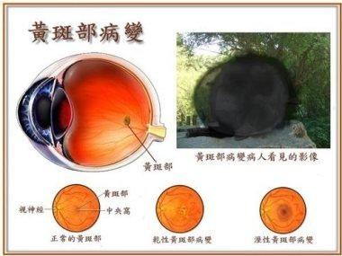 視網膜病變